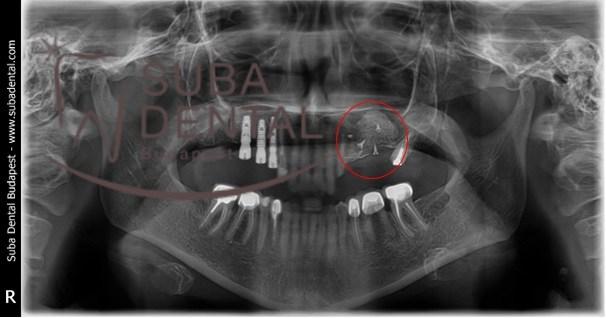 Augmentation osseux horizontal et vertical (selon la méthode de Dr Urban) (126)