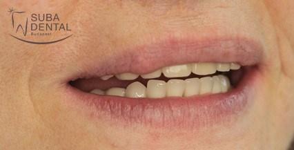 4 implantátumon elhorgonyzott Lokátoros fogsor készítése (162)