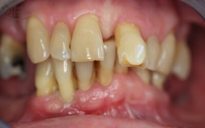 Foghiányok pótlása implantátumokkal, fémkerámia körhíd, I. kezelési fázis: fogkő-eltávolítás, fogászati gócok megszüntetése (104) (Esetbemutató)